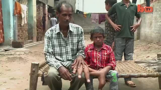 دست های عظیم یک پسر هندی