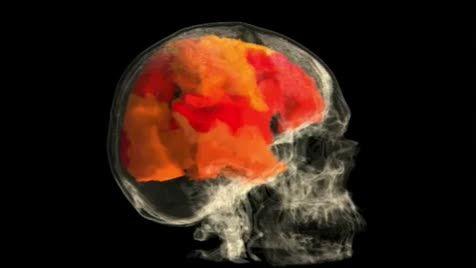 نگاهی به مغز یک خانم در هنگام ارگاسم در زیر دستگاه MRI