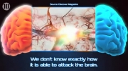 10راز حل نشده مغز برای انسان