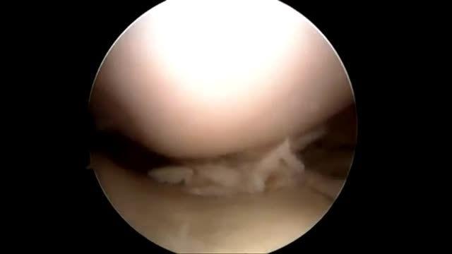 درمان پارگی مینیسک زانو با آرتروسکوپی
