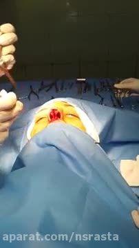 فیلم جراحی بینی  (4)