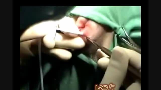 جراحی کیسه مقعدی- anal sac surgery