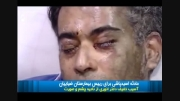 اسید پاشی این سری رو صورت رئیس بیمارستان ضیاییان تهران