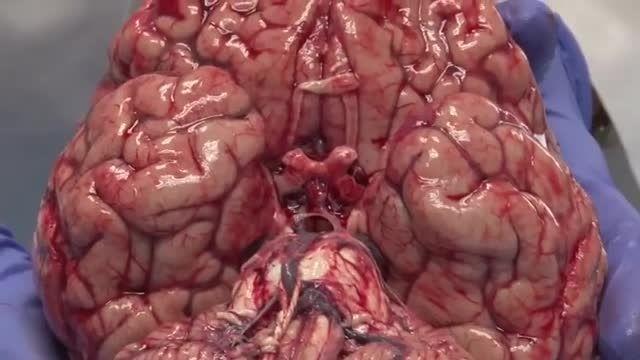 دانلود تشریح مغز