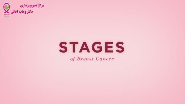 سرطان پستان -قسمت یازدهم - مراحل سرطان