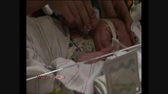 اولین جراحی پیوند قلب برای نوزاد 6 روزه!!!