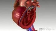 سکته ی قلبی یا نارسایی قلبی