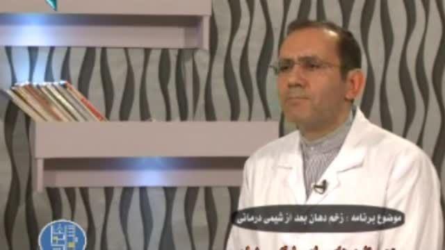 علت زخم دهان بعد از شیمی درمانی!