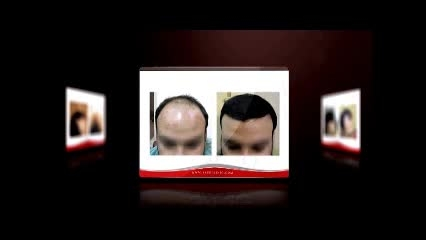 بخشی از تیزر کاشت مو کلینیک تخصصی پوست و مو ساعی