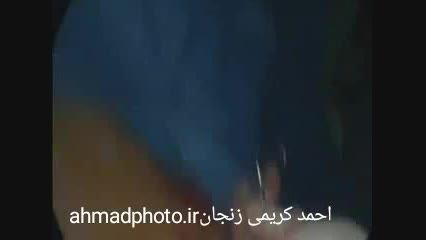 بول ریه-جراحی توراکس ریه-گالری عکس احمد کریمی-