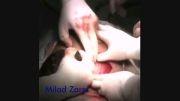 عمل جراحى سزارین