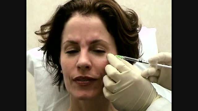 تزریق بوتاکس برای درمان چروک اطراف چشم(خطوط پنجه کلاغی)