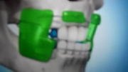 مراکز تخصصی ارتودنسی دکترصدرالدینی: درمان فک بالای کوچک
