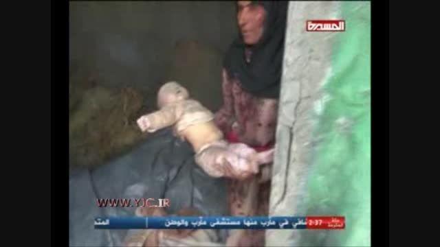 شهادت نوزاد 8 ماهه در یمن توسط آل سعود