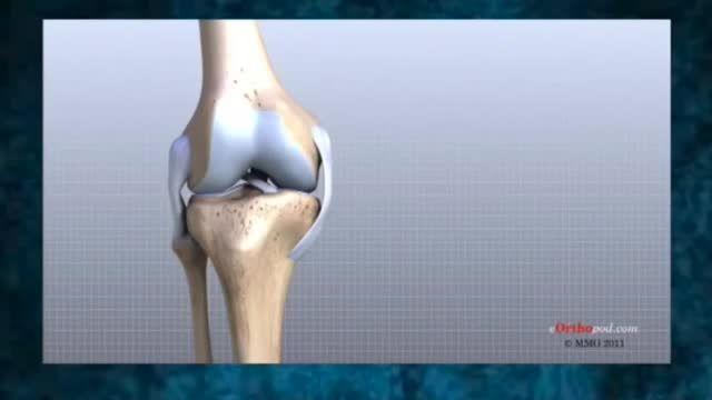 زانو درد ، آرتروز زانو، جراحت های ورزشی، زنگ سلامت 12