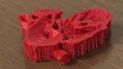 جراحی موفق قلب کودک با کمک فناوری چاپ سه بعدی
