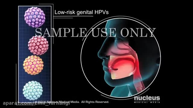 ویروس HPV یا همان زگیل Human Papillomavirus