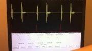 صداهای قلبی - رگورژتاسیون (نارسایی) دریچه آئورتی