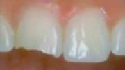 دکتر مسعود داودیان :: دندان قروچه و ارتودنسی