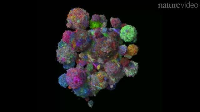 رشد تومورهای سرطانی در تصاویر رنگی - زومیت