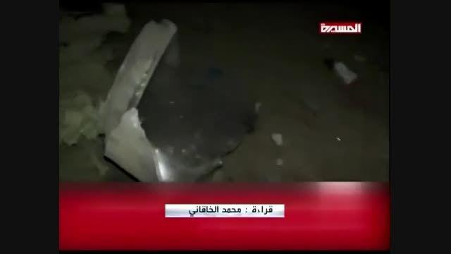 تصاویر هولناک حملات آل سعود به یمن (+18 لطفا)