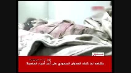 نخستین تصاویر از کودک کشی سعودی ها(وهابی ها) در یمن