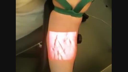 تکنولوژی جدید پیدا کردن رگ و گرفتن خون