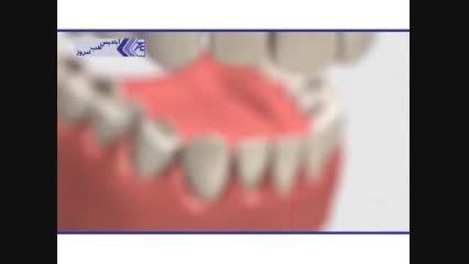 درمان های رایج در دندانپزشکی