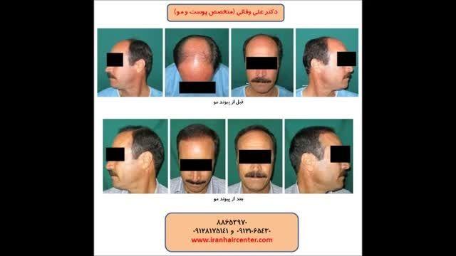 درد در کاشت موی طبیعی