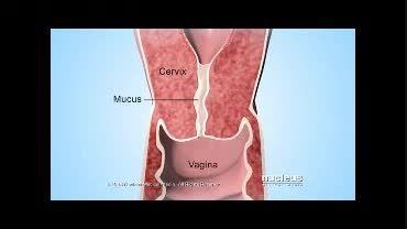 کارکرد قرص های ضد بارداری چیست(دوبله)
