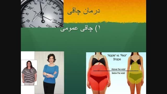 مشاوره جراحی چاقی و متابولیک