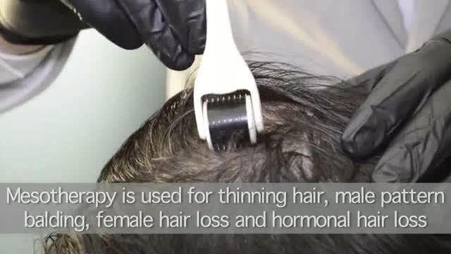 مزوتراپی برای درمان ریزش مو چطور انجام می شود؟