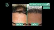 نگران ریزش مو و مشکلات پوستی خود نباشید