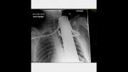 وحشتانک ترین تصاویر از اشعه ایکس در بدن انسان