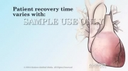 آموزش پیشگیری از حمله قلبی