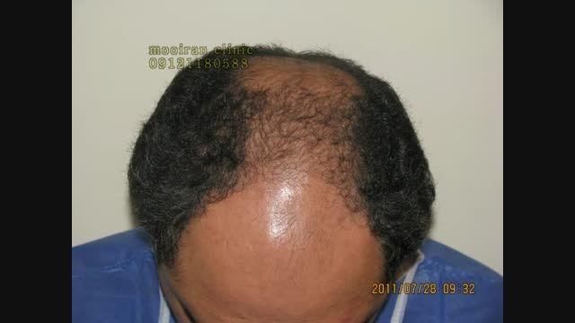 نمونه کاشت مو به روش ترکیبی در کلنیک کاشت مو دکتر رضائی