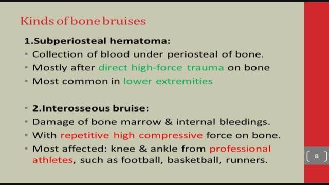 خانم دکتر بهناز تازش ،خونریزی در استخوان(کبودی استخوان)