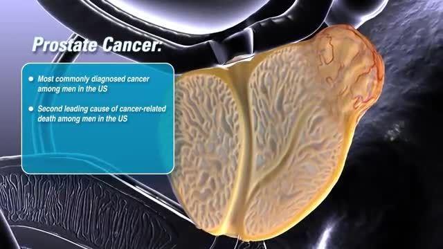 انیمیشن سرطان پروستات