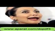 عکس هایی از افراد مشهور دنیا بدون دندان