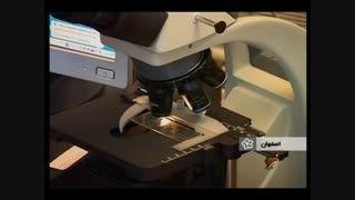 کاربرد آلیاژ مقاوم به خوردگی روی - آلومینیوم