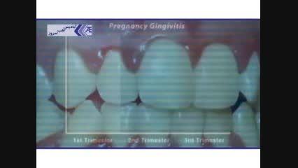 اهمیت بیماری های دهان و دندان در دوران بارداری