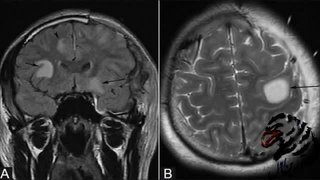 مروری بر تومور مغزی