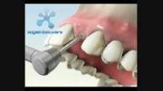 جراحی کاشت ایمپلنت تک دندان