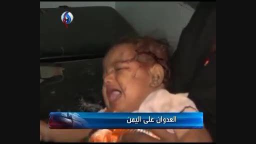 حمله هوایی عربستان به مردم یمن در عید فطر