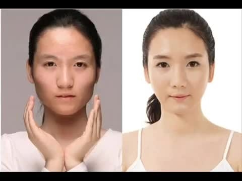 قبل و بعد از جراحی پلاستیک 1