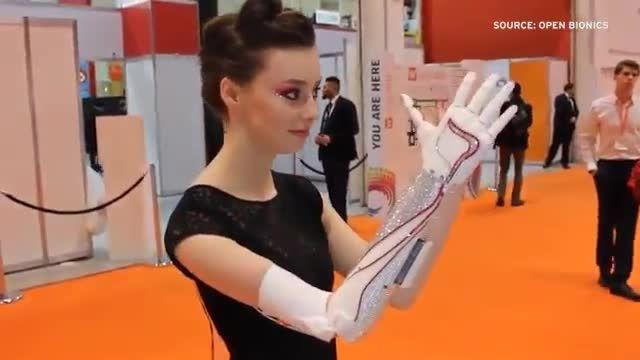 پرینت سه بعدی و ساخت عضو برای افرادی که نقص عضو دارند