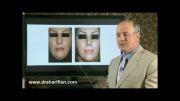 تصاویر قبل و بعد از جراحی زیبایی بینی