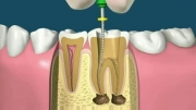 مراحل درمان ریشه دندان ( عصب کشی )