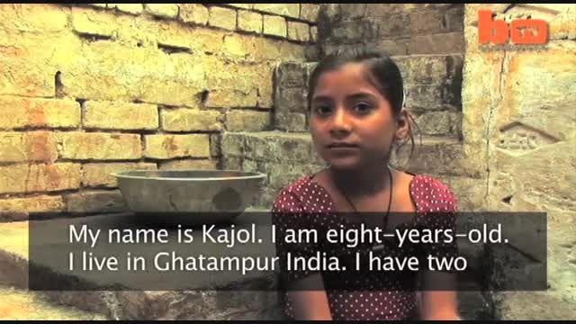 باورنکردنی : دختر هندی که نیش مار رویش اثری دارد