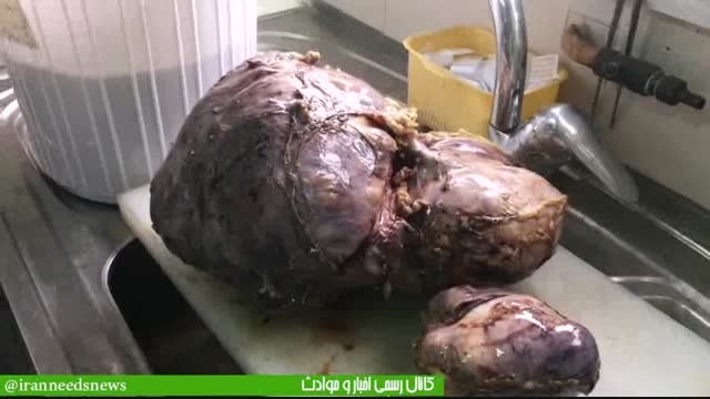 فیلم خارج کردن بزرگترین تومور 8 کیلویی جهان در ایران